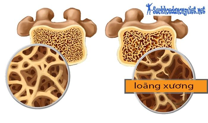Lười vận động có thể làm tăng nguy cơ loãng xương