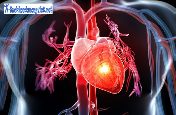 Lười vận động có thể gây ra các vấn đề về tim mạch