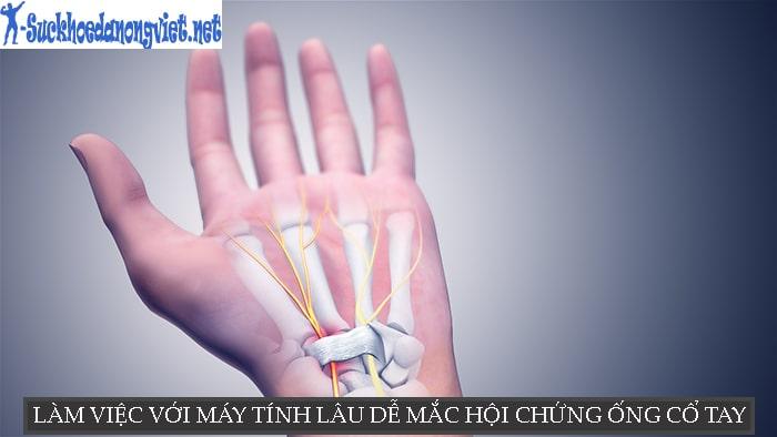 Sử dụng chuột nhiều có thể mắc hội chứng ống cổ tay