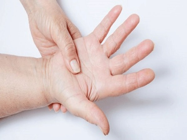 2 triệu chứng hội chứng ống cổ tay không thể bỏ qua 1