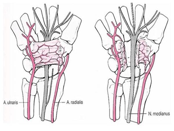 2 triệu chứng hội chứng ống cổ tay không thể bỏ qua 2