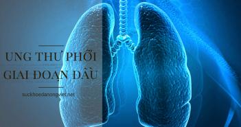 Ung thư phổi giai đoạn đầu và những điều bạn cần biết