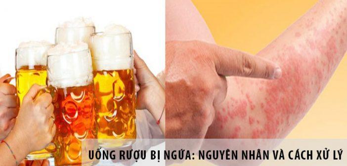 Uống rượu bị ngứa: Nguyên nhân và cách xử lý